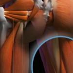 Tendinopatia proximal de los isquiotibiales