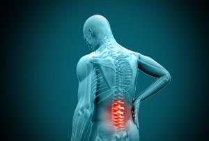 Qué es una hernia discal y cuáles son sus causas?